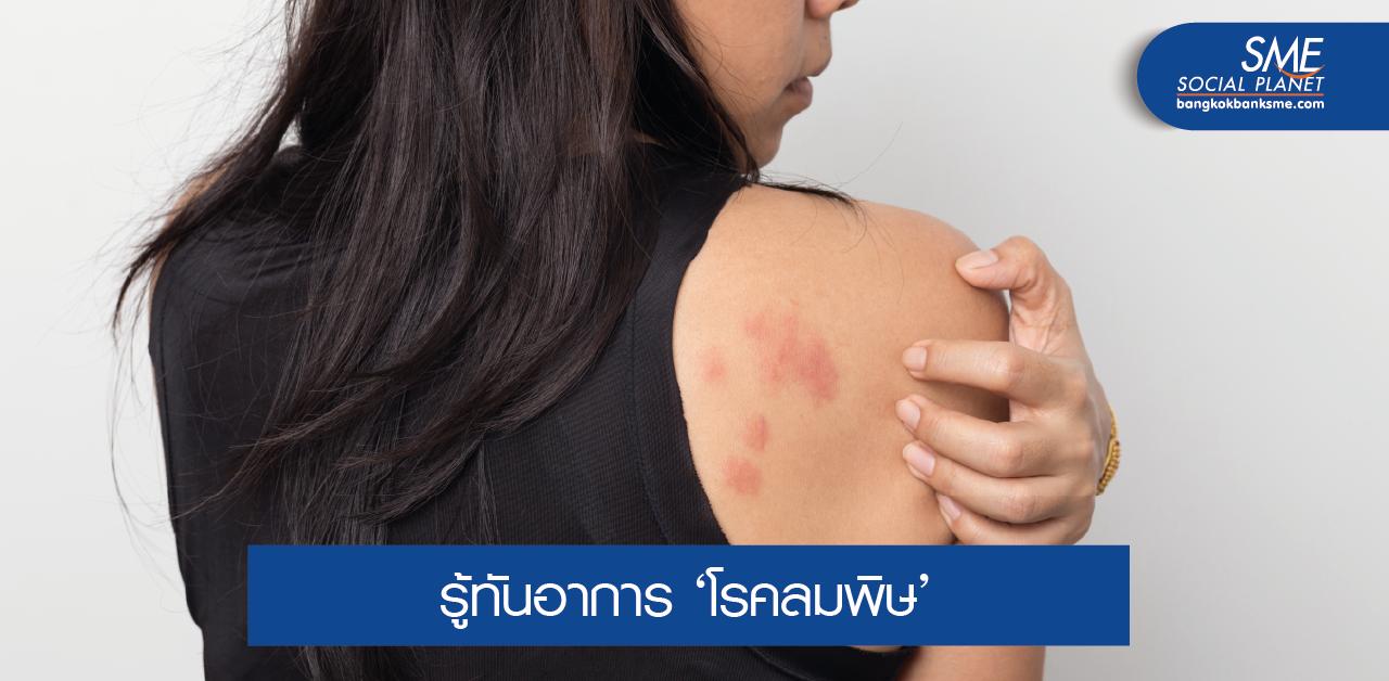 โรคลมพิษ ป้องกันและบรรเทาได้ด้วยตัวเอง